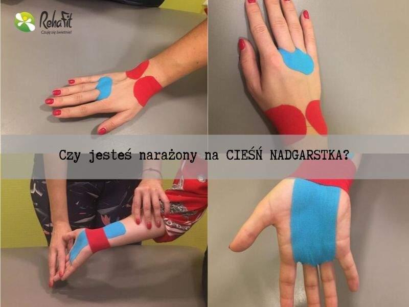 Fijoterapeuta podczas wykonywania aplikacji Kinesiotaping w przypadku zespołu cieśni nadgarstka.