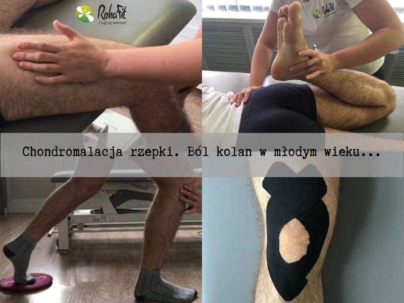 Fizjoterapeutka podczas fizjoterapii w przypadku chondromelacji rzepki. Przykładowa rehablitacja i autoterapia.