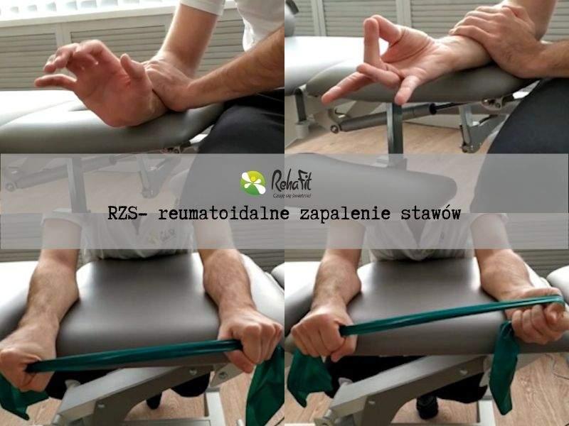 Fizjoterapueta podczas fizjoterapii w przypadku reumatoidalnego zapalenia stawów.